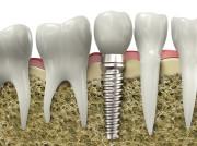 """Implantate haben eine wurzelähnliche Form mit angedeuteter """"Schraubenwindung""""."""