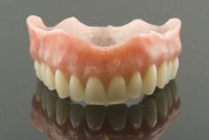 Oberkiefer Totalprothese zum Ersatz aller Zähne